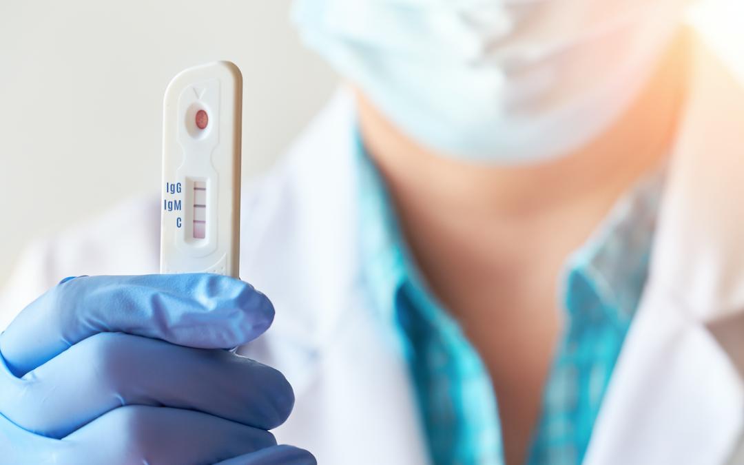 Test sierologici, step e misure di tutela in farmacia. Ecco cosa prevede il protocollo usato a Bolzano